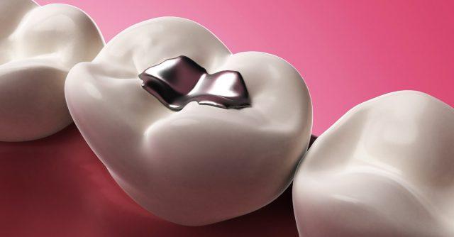 Dental Tooth Fillings Cost Delhi India
