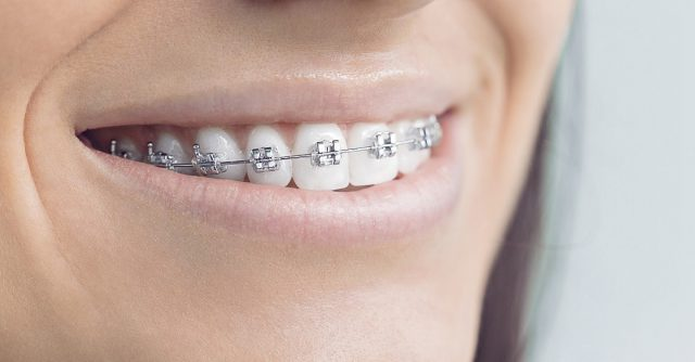 Orthodontic Treatment Delhi Dwarka India
