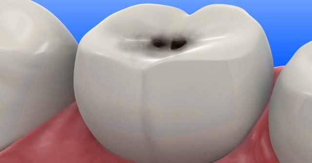 These 5 Tips Help You Fight Cavity